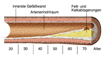 Arteriosklerose im Zeitverlauf