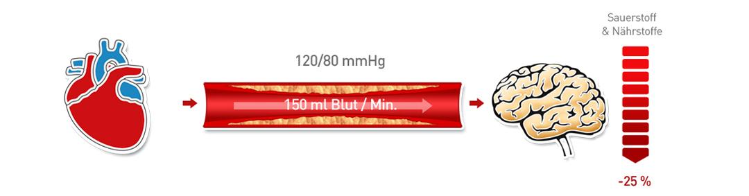Arterieller Bluthochdruck 2