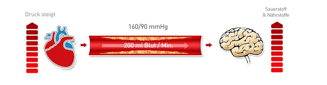 Arterieller Bluthochdruck 3
