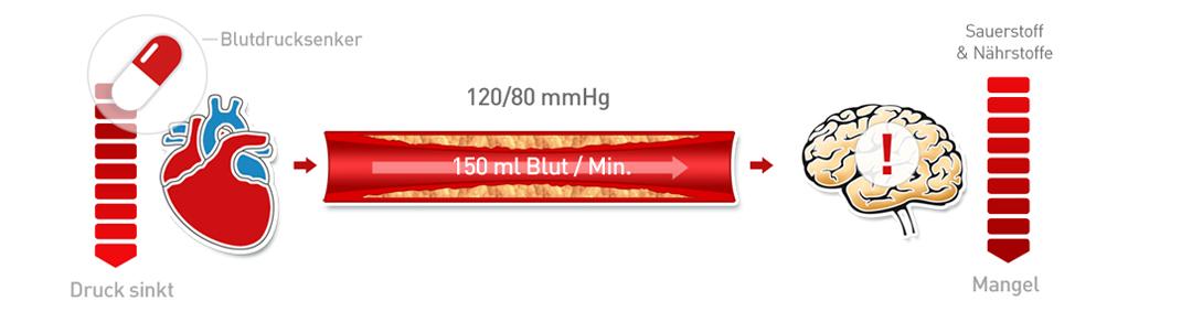 Arterieller Bluthochdruck 4